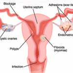 Medicine For Blocked Fallopian Tubes